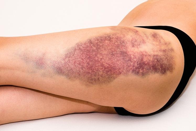 Excessive Bruising