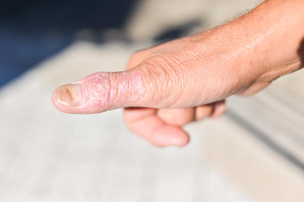 psoriasis nail thumb