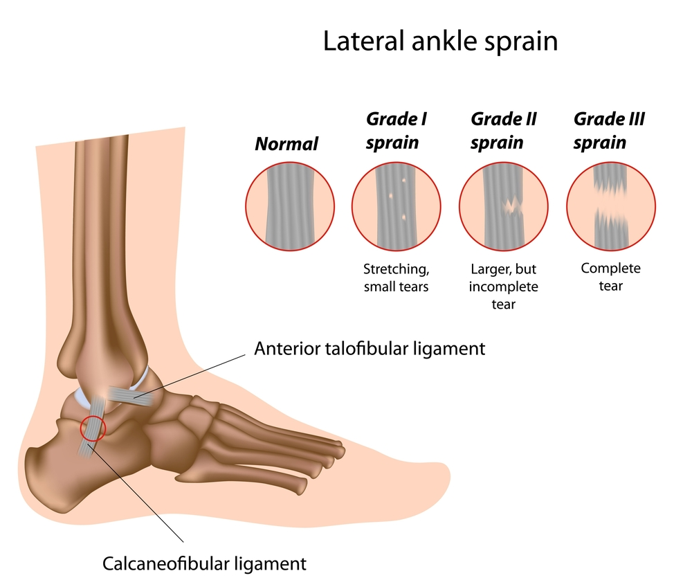 Different 'Types' of Sprains