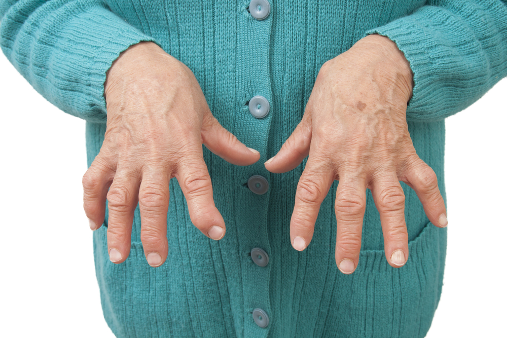 Rheumatoid Arthritis is Caused by the Immune System