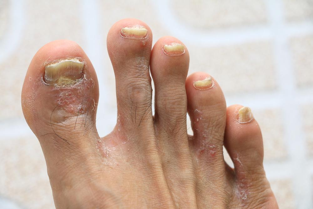 psoriasis nails feet